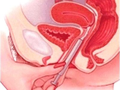 Thuốc đặt diệt tinh trùng